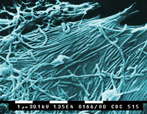 Ebola_virions